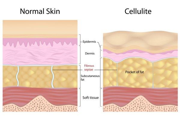 cellulit kontra normalna skóra