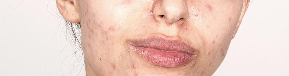 Przebarwienia po trądziku na twarzy