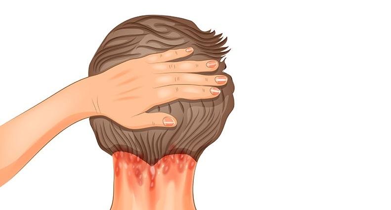 Łuszczyca głowy – czym jest