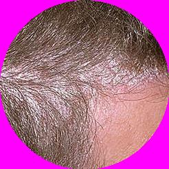 Łuszczyca głowy