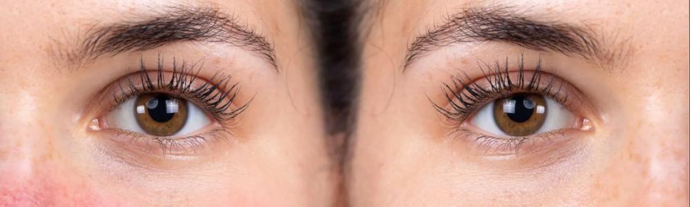 Nużeniec oka - jak go leczyć