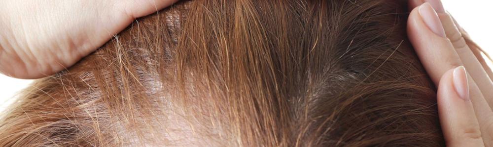 Preparaty na porost włosów poznaj najskuteczniejsze