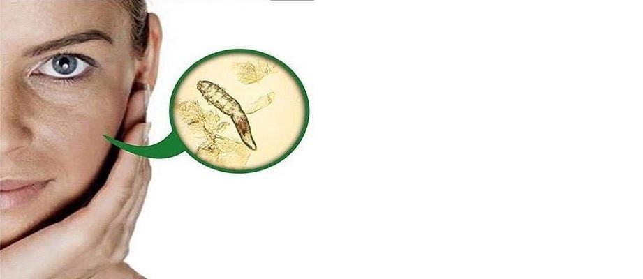 Jak zabić nużeńca Co zredukuje ilość pasożytów
